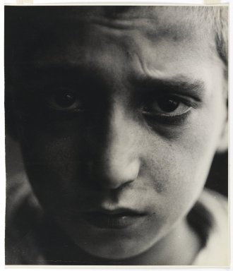 Consuelo Kanaga (American, 1894-1978). Malnutrition (New York), 1928. Gelatin silver photograph, Image: 10 1/2 x 9 in. (26.7 x 22.9 cm). Brooklyn Museum, Gift of Wallace B. Putnam from the Estate of Consuelo Kanaga, 82.65.447